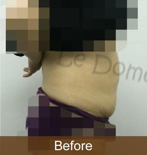 HIFU減肥效果