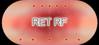 RET RF