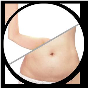 2. 【UltraFormer III 】效能是收緊鬆弛皮膚及溶較薄脂肪層為主