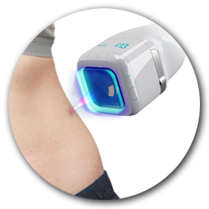 3.【SCIZER】的治療探頭比【UltraFormer III 】大『十倍』,主要溶較厚脂肪層