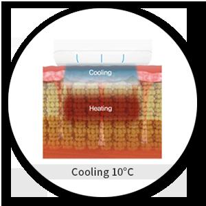 4. 【SCIZER】設有冷凍增加治療時舒適度