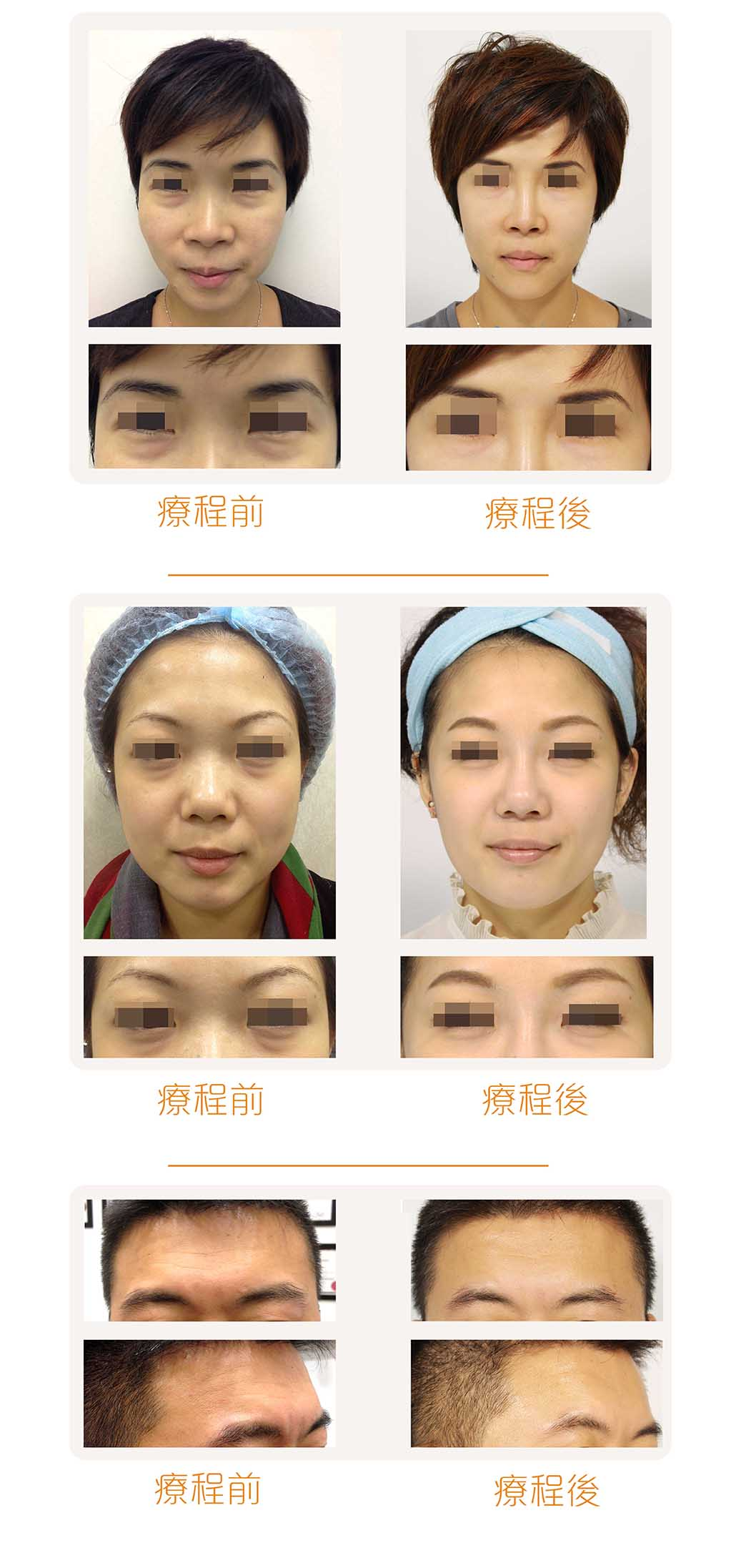 dermaveil_sample